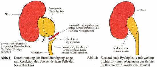 UniversitätsKlinikum Heidelberg: Harnaufstau, Erweiterung des ...