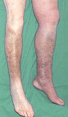 Die Tabletten von der Ermüdung in den Beinen bei warikose