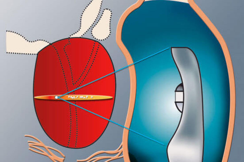 ipilimumab prostatakarzinom