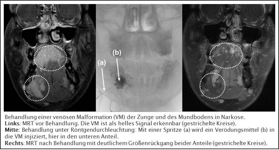 UniversitätsKlinikum Heidelberg: Kopf-Hals-Diagnostik