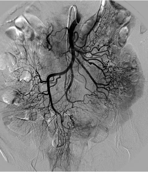 Angiographie der Arteria mesenterica superior