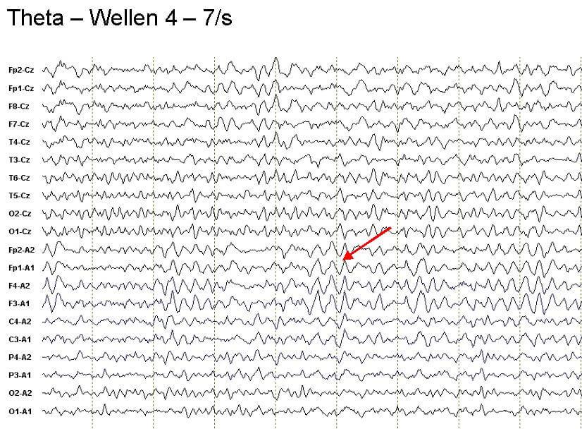 anzeichen epilepsie bei kindern